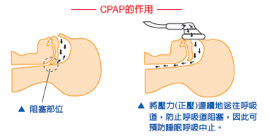 CPAP theyp